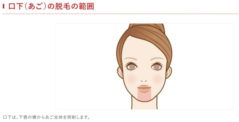 口下(あご)の脱毛の範囲